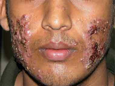 topical steroids cause rosacea